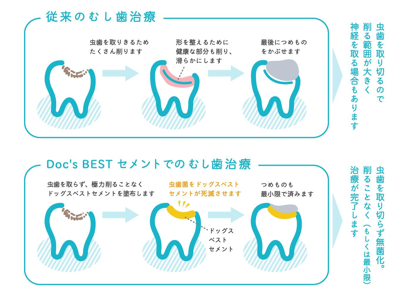 治す で 虫歯 自力